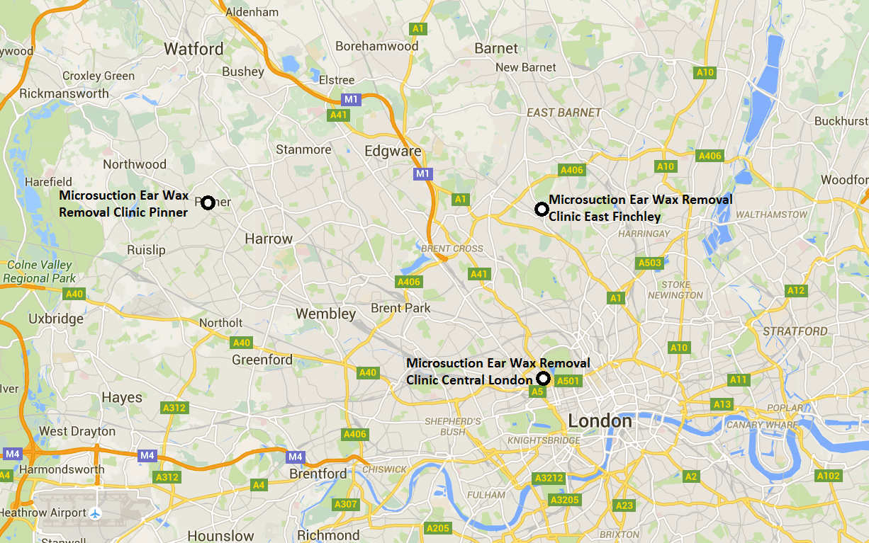 Ear Wax Removal London | Microsuction In London NW1, EN5, N2, NW7, NW11, W5, EN5 & HA5 From £50 - UPDATED